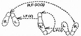 Newman-HFA2